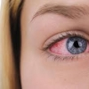 July is National Dry Eye Awareness Month