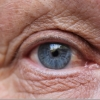 The Basics of Age-Related Macular Degeneration (AMD)