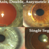 Keratoconus as refractive surgery: Thinking outside the 'cone'