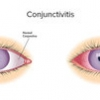 Choosing wisely - treating pink eye