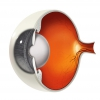 Cataracts Affect More Than Just The Elderly