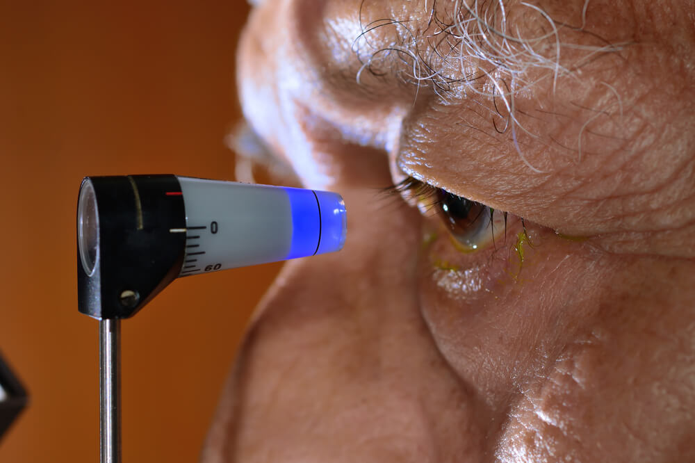 A tonometry test is used to discover the pressure within an eye. This is tonometry in action.