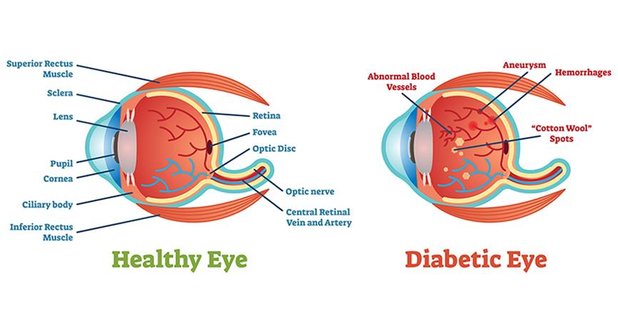 Diagram of Diabetic eye vs healthy eye