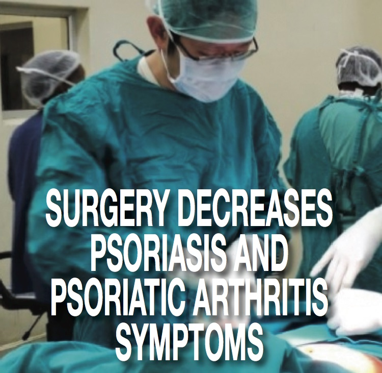 Psoriasis And Psoriatic Arthritis Symptoms Bariatric Surgery