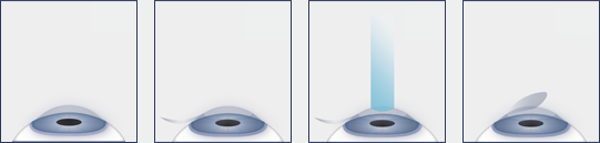 Illustrated diagram of the LASIK process