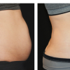CoolSculpting – Eliminate the Fat Bulges That Bother You