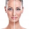 Skin Rejuvenation - A solution for Troublesome sings of wrinkles and aging