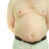 What is Gynecomastia and what causes it?
